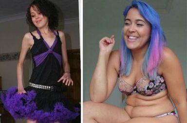 Megan Jayne Crabbe Anorexia Body Positivity