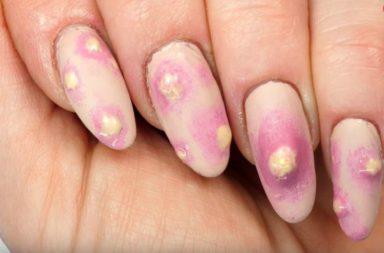 Pimple Nails