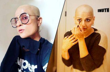bollywood, tahira kashyap, ayushmann khurrana wife tahira goes bald, bald is beautiful, sonali bendre